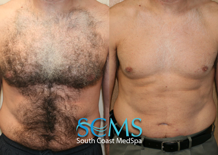 Permanent Laser Hair Removal And Skinhair Color Smcs