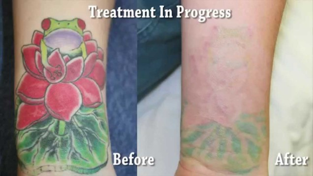 Laser tattoo removal smcs for Orange county tattoo