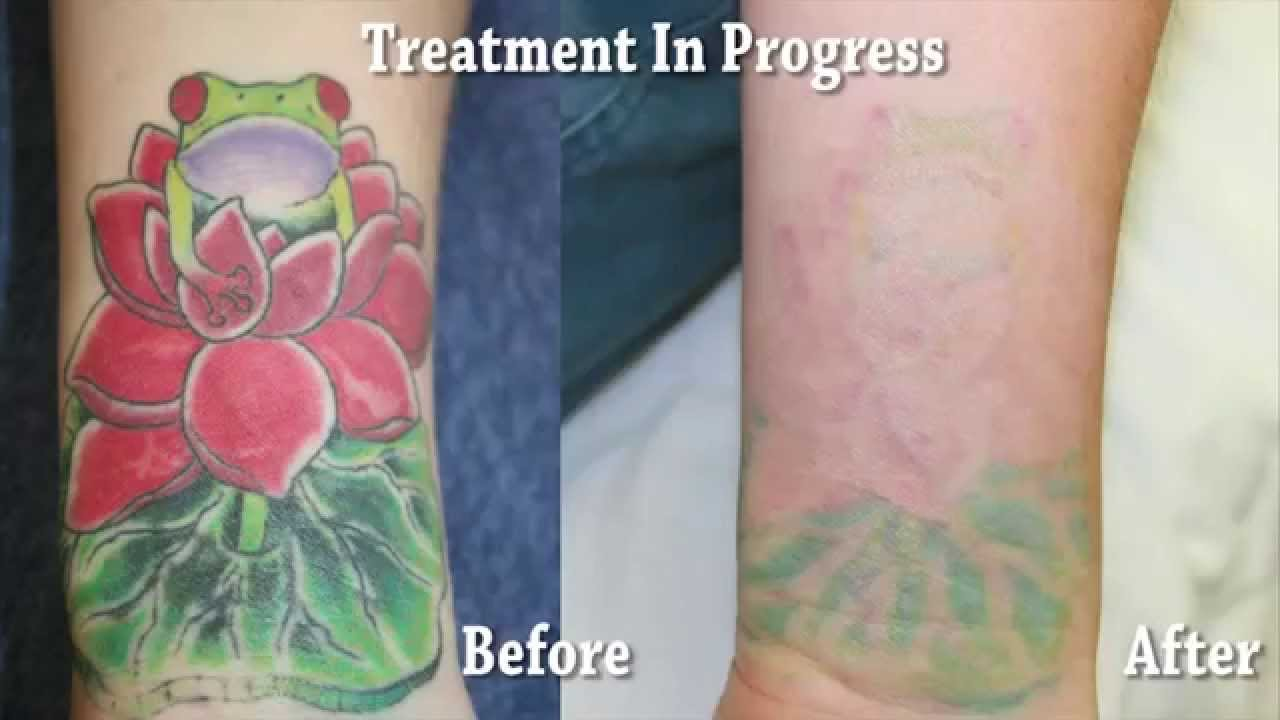 orange county tattoo removal results smcs