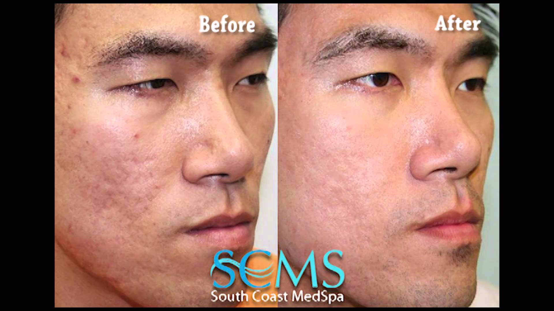 Before After Asian Male Newport Beach Laser Acne Scar Removal Smcs