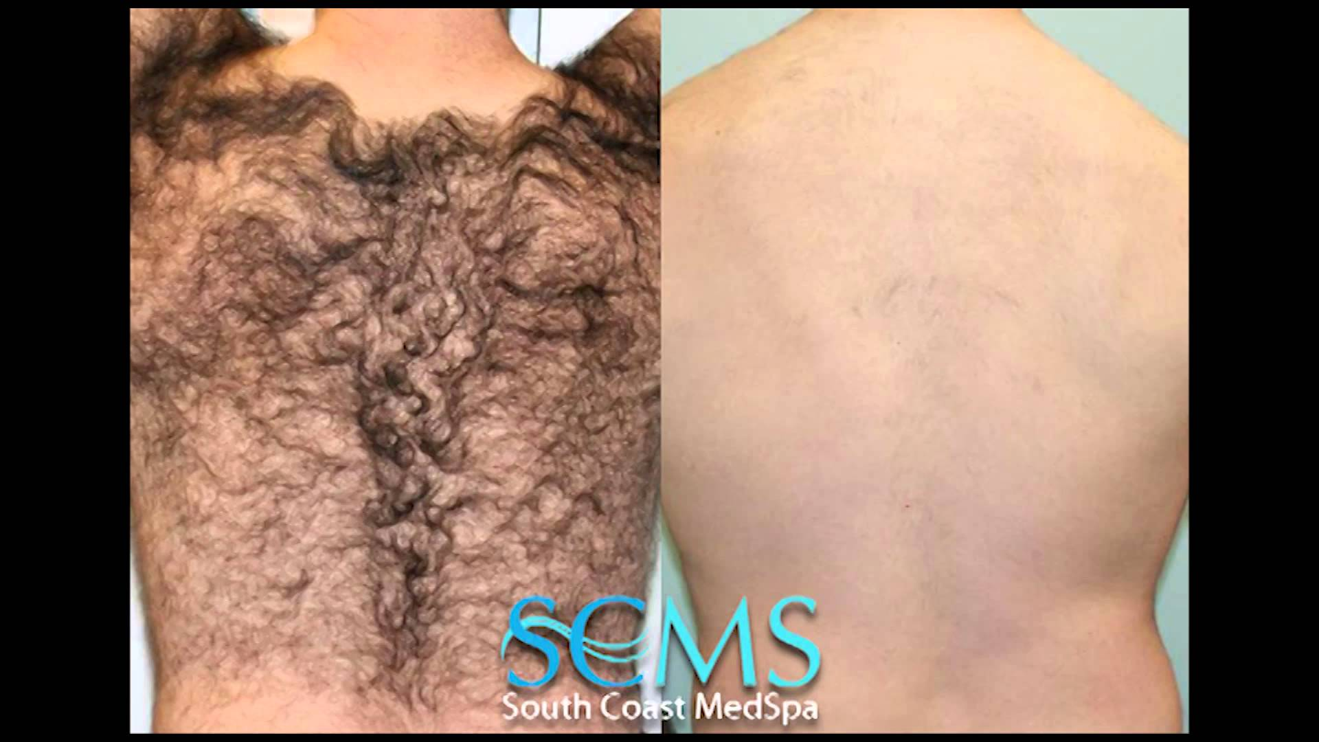 Laser Hair Removal Of Back Before After Smcs