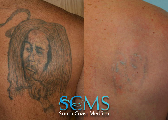 Laser tattoo removal gallery smcs for Laser hair removal over tattoo