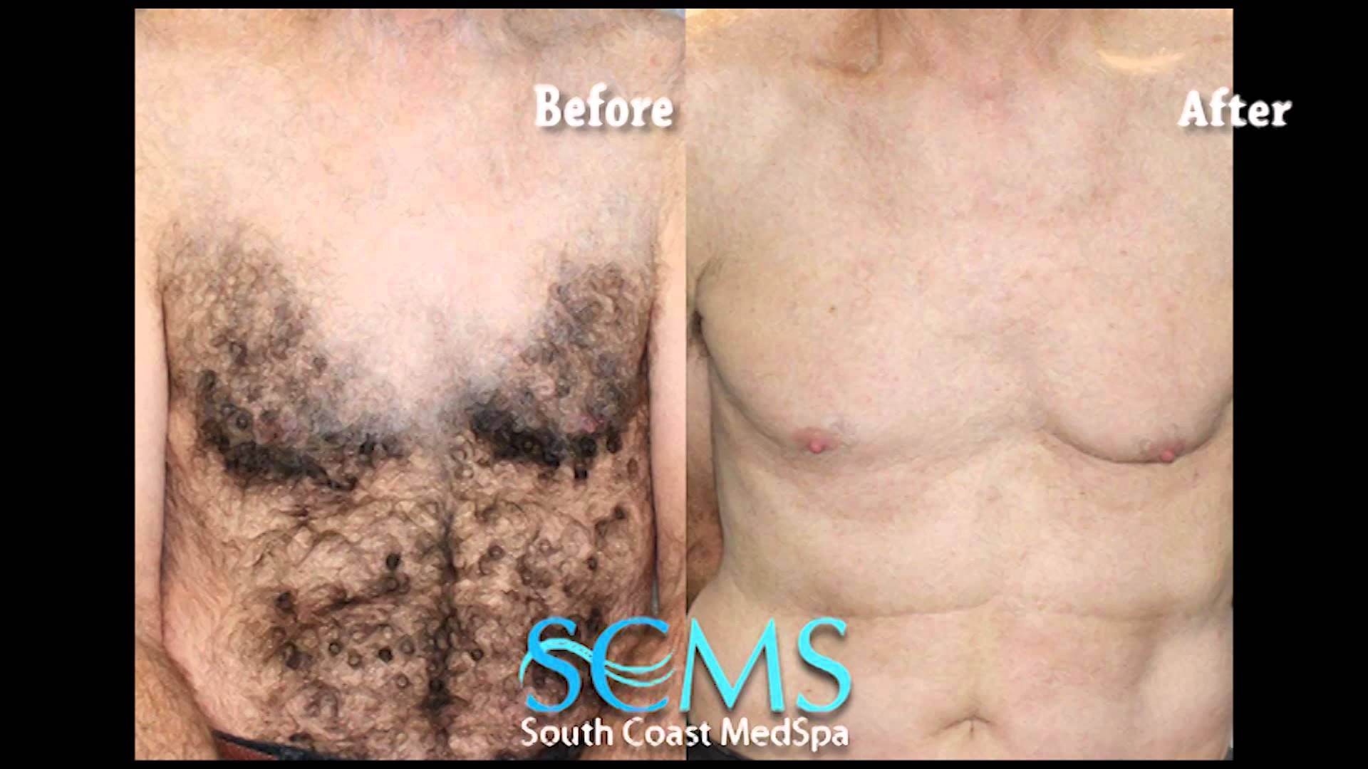 Newport Beach Laser Hair Removal Chest And Abs Before After Smcs